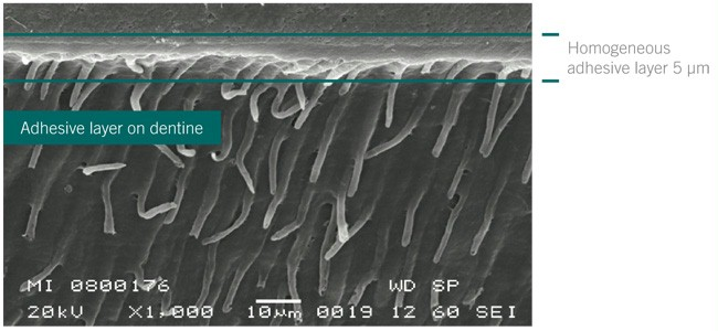 homogenous adhesive layer formed by GLUMA 2Bond
