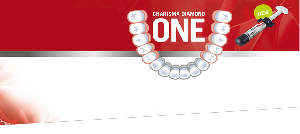 Charisma Diamond ONE